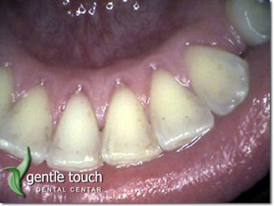 DENTAL GENTLE TOUCH Dental surgery Beograd